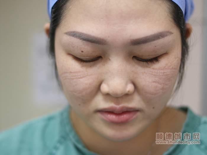 由于長時間佩戴護目鏡和口罩,在李肖嫻的臉上留下了印痕。.jpg